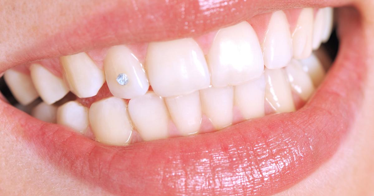 Modesünde Zahnschmuck 90er